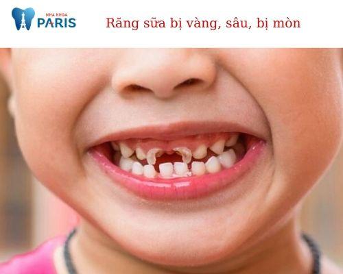 răng sữa bị sâu có nên trám không