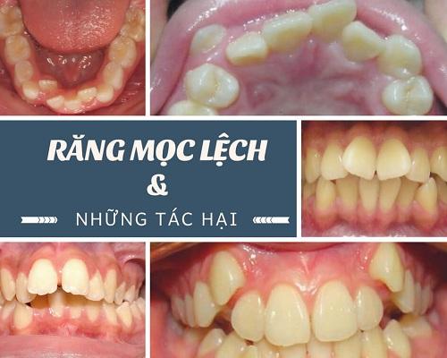 răng thừa mọc giữa 2 răng cửa