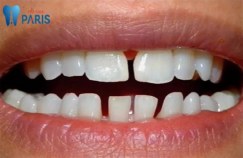 răng thưa tướng số