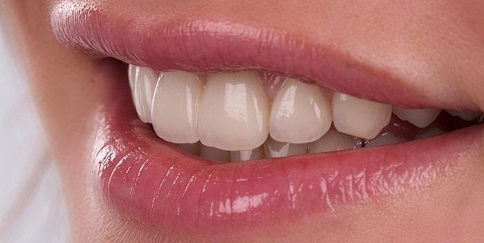 Bạn có thể tham khảo trước về vấn đề này để cân nhắc chính xác về mức giá răng sứ vita mà mình cần chi trả.