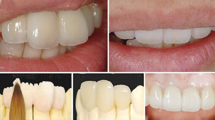 Răng toàn sứ Vita giá bao nhiêu tiền