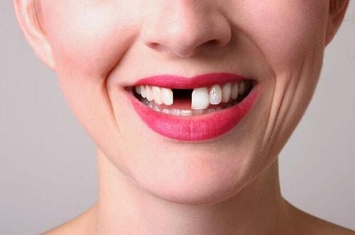 răng vĩnh viễn có mọc lại không