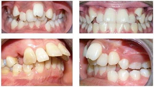 Răng vĩnh viễn mọc lệch
