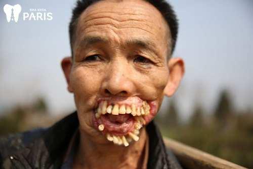 Răng xấu