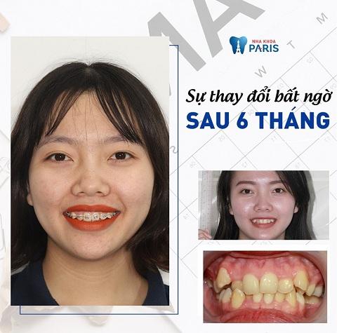 răng xấu làm sao đây