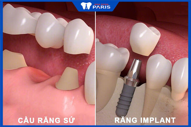 So sánh cầu răng sứ và Implant