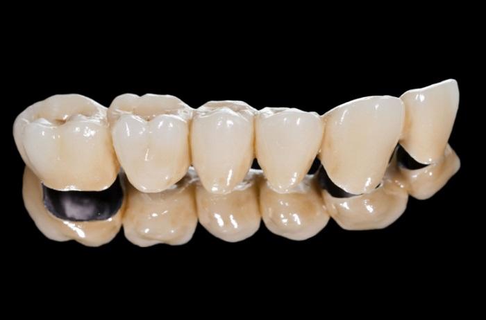 Răng sứ titan là răng gì