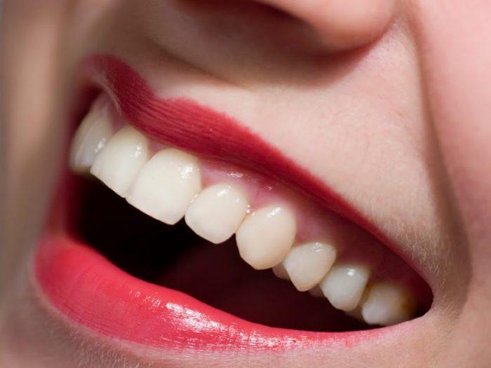 Nên chọn phục hình răng sứ kim loại