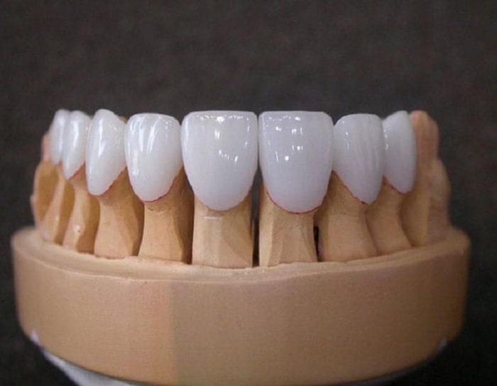 Chi phí của răng sứ kim loại thường