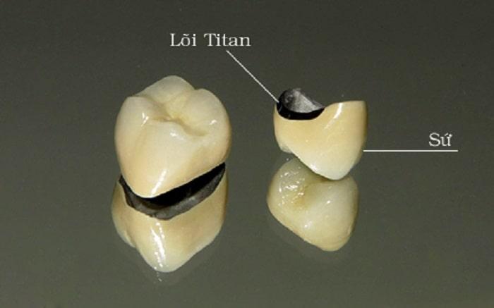 So sánh 2 loại răng sứ kim loại