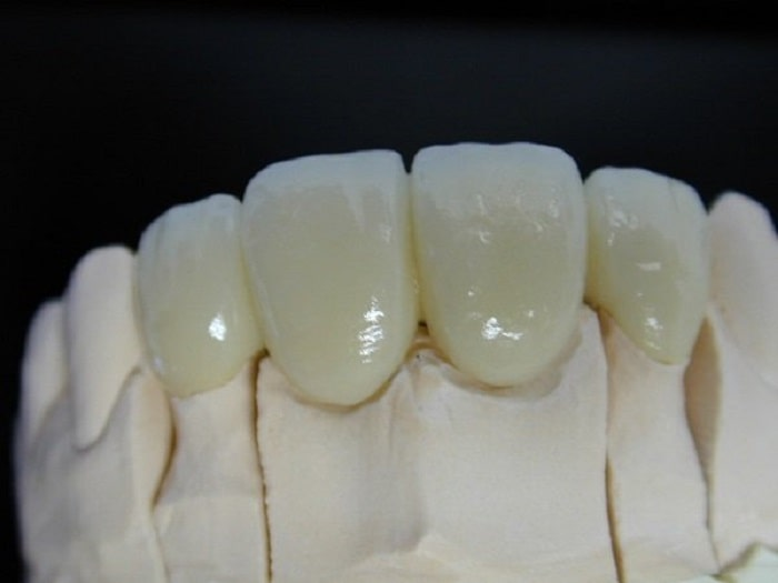 Răng sứ kim loại và răng sứ titan