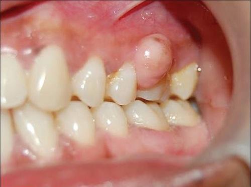 sưng mộng răng hàm