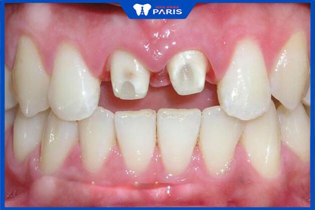 Tác hại của bọc răng sứ thẩm mỹ là gì
