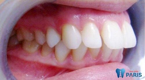 tác hại của việc nhổ răng khi niềng