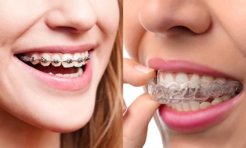 tác hại khi niềng răng