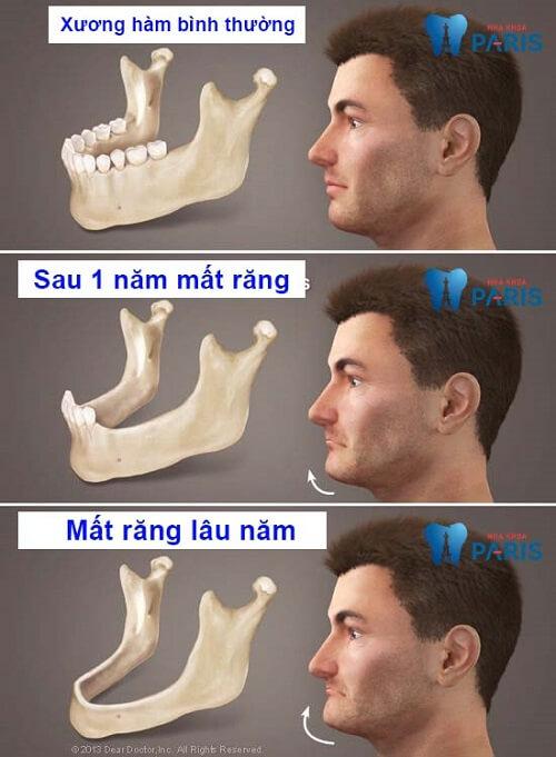 Mất răng bao lâu thì bị tiêu xương
