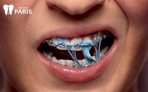 tác hại niềng răng