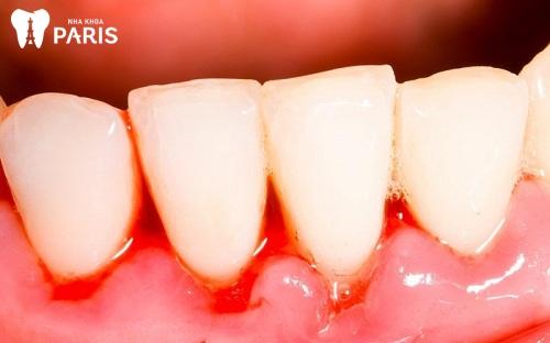 tại sao bị chảy máu chân răng thường xuyên