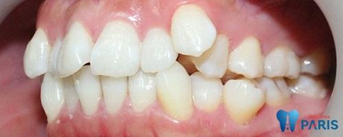 tại sao phải nhổ răng khi niềng răng