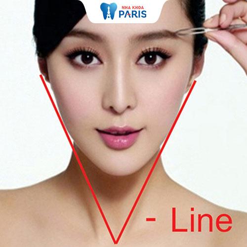 Thông tin A - Z về thẩm mỹ cằm V - line