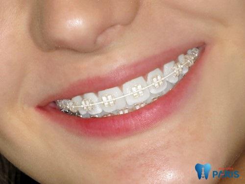 thay dây cung niềng răng