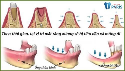 Quá trình tiêu xương ổ răng diễn ra như thế nào?