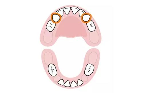 trẻ mọc răng nanh đầu tiên