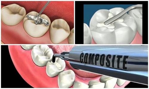 trị sâu răng vĩnh viễn