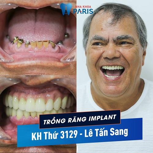 trồng răng cửa