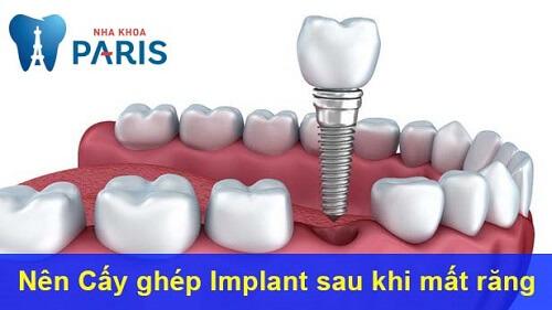 Phương pháp chị mất răng lâu năm