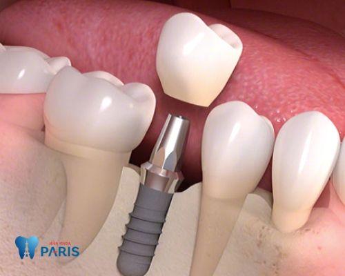 trồng răng không có chân răng 2