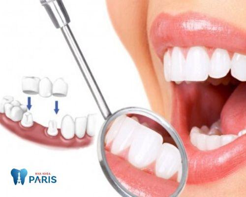 trồng răng không có chân răng 3