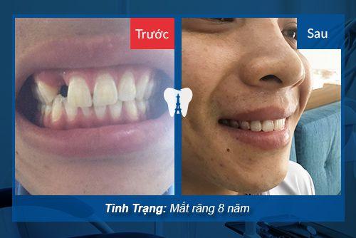 trồng răng không có chân răng 1