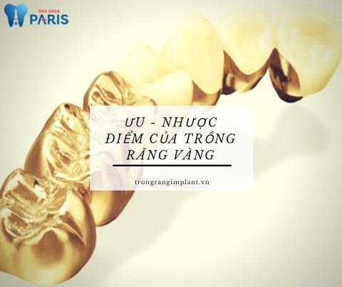 Trồng răng vàng có nhiều ưu - nhược điểm khác nhau