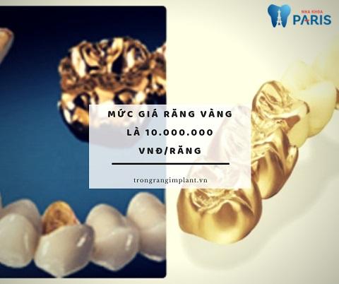 Mức giá răng vàng tại Nha Khoa Trồng Răng Implant Paris