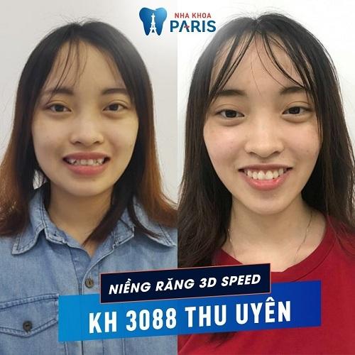 trước và sau khi niềng răng khểnh