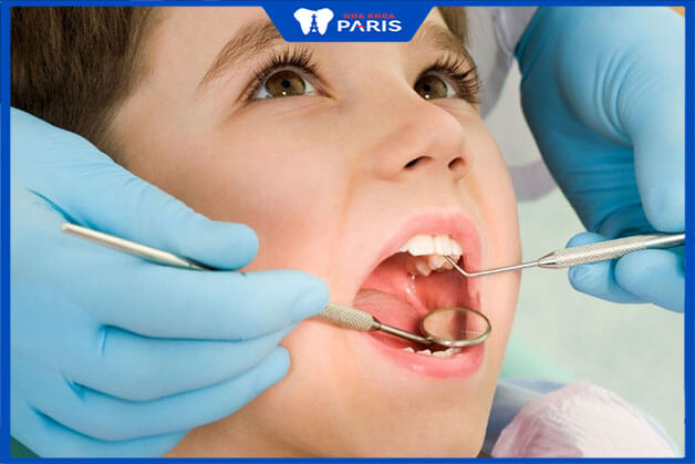 Vì sao nên đi khám răng cho bé từ sớm