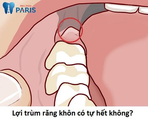 Viêm lợi trùm răng số 8
