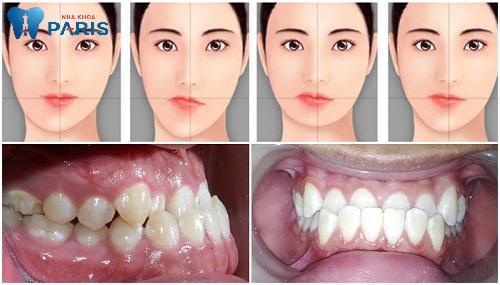 Xem răng mọc ngược lên mũi