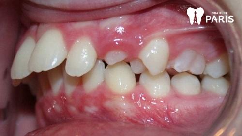 Xem tướng răng hô