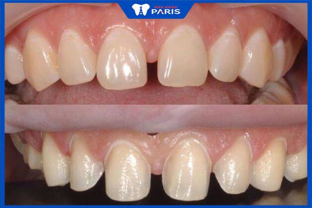 Ai được chỉ định dán răng sứ?