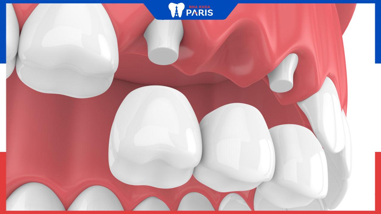 Bắc cầu răng sứ và những thông tin cần thiết