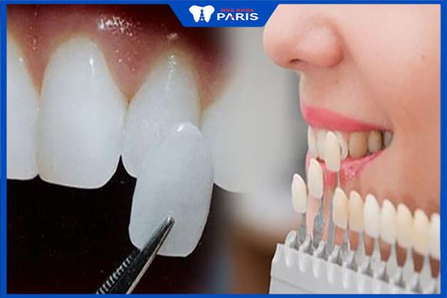 Bí quyết lựa chọn mặt dán răng sứ phù hợp