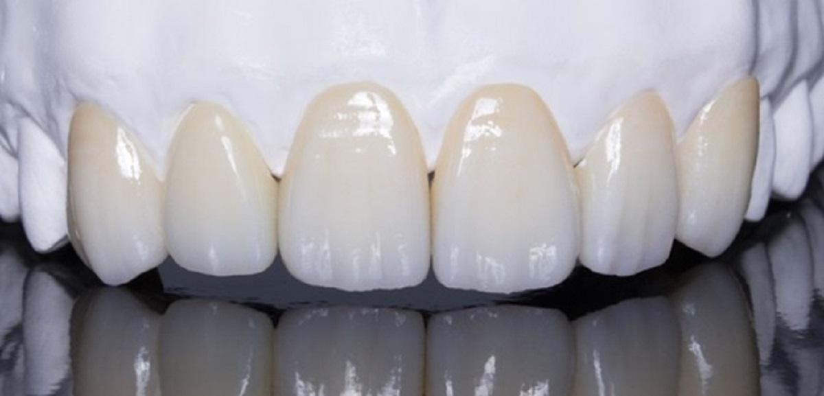 Bọc răng sứ 2 hàm giá bao nhiêu tiền tất cả? Những lưu ý quan trọng