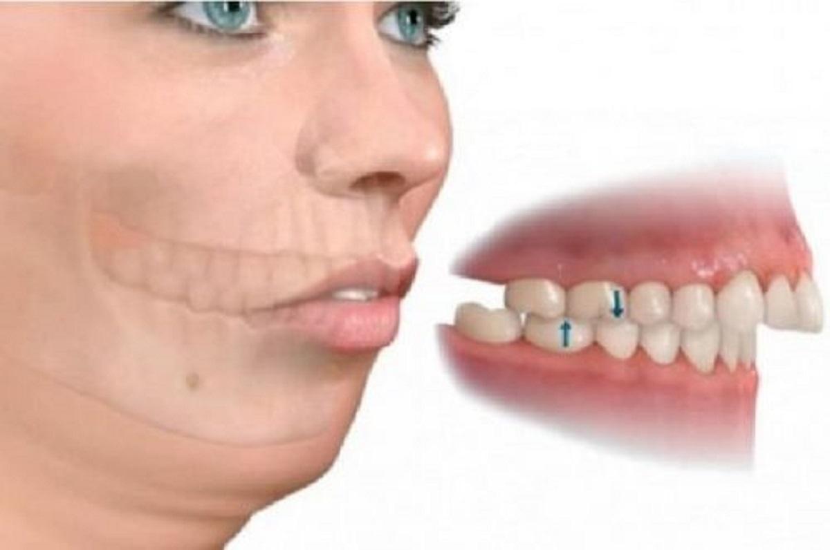 Bọc răng sứ bị hô nguyên nhân do đâu, khắc phục như thế nào?
