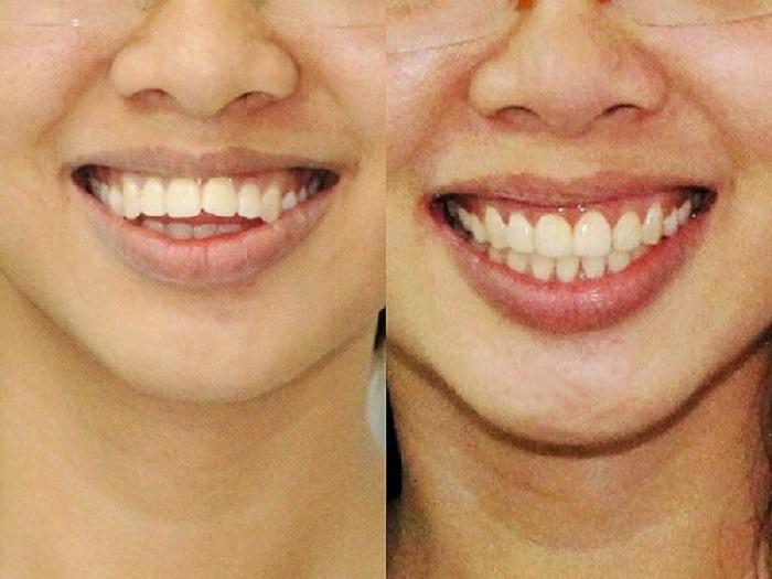 Nguyên nhân nào khi bọc răng