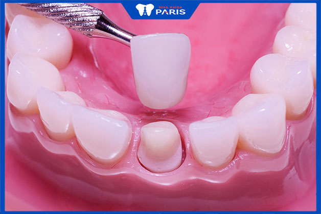 Bọc răng sứ chỉ đau trong trường hợp cụ thể nào
