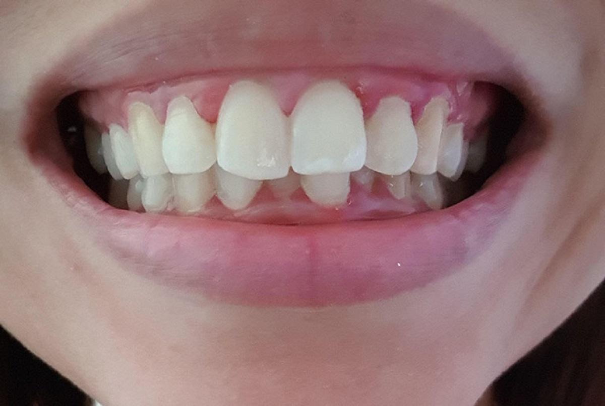 Bọc răng sứ cho răng cửa bị hô, vẩu có hiệu quả không