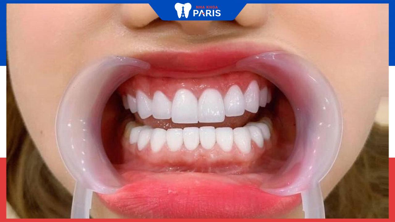 Bọc răng sứ đau không, nguyên nhân bị đau là do đâu
