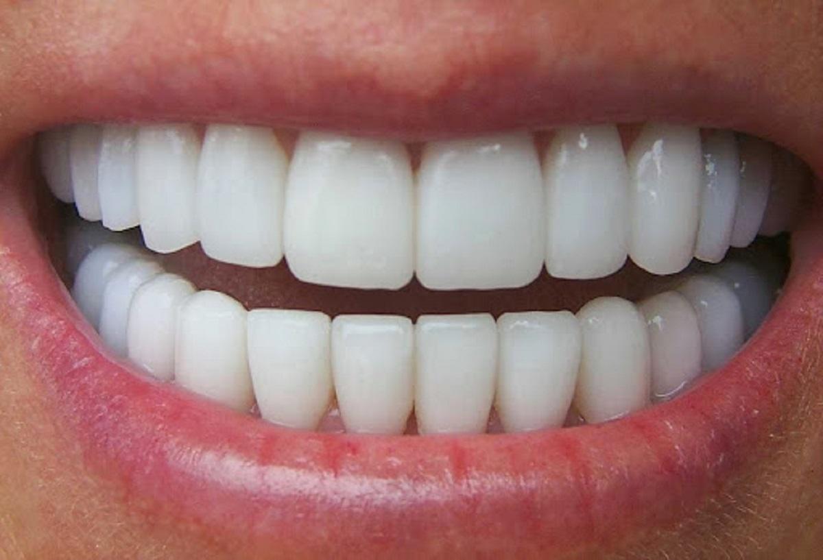 Bọc răng sứ giá bao nhiêu? Bảng giá chi tiết mỗi loại